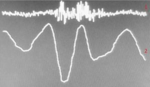 "Figure 5. 1 - uninformative signal; 2 – the AAW movement pattern while saying the words ""Excuse me"""