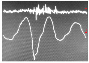"Figure 7. 1 - uninformative signal; 2 – the AAW movement pattern while saying the words ""I live and work in Moscow""."